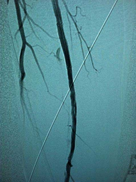 Interventional case 4